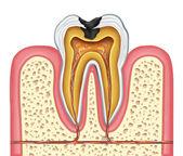 Vnitřní anatomie dutiny zubu
