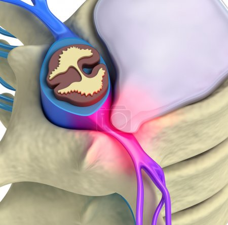 Prolapse of intervertebral disc closeup
