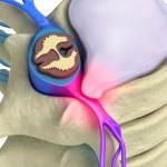 Prolapse of intervertebral disc closeup...