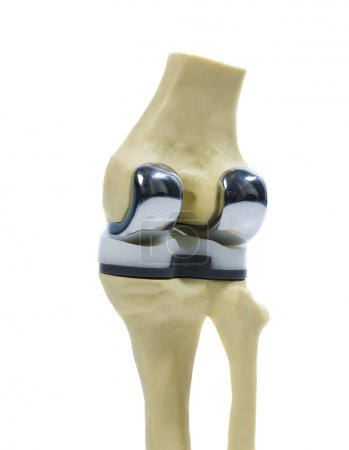 Photo for Plastic study model of a knee replacement - Royalty Free Image