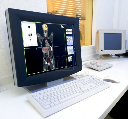 Monitor with an image made with the PET/IC scan